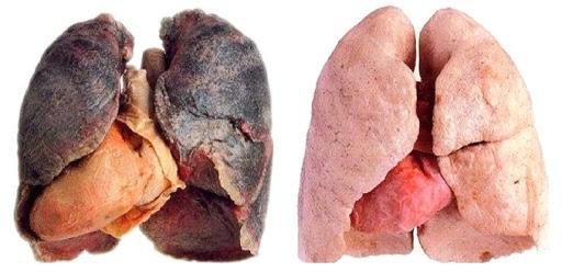 Comment le tabagisme affecte la croissance musculaire